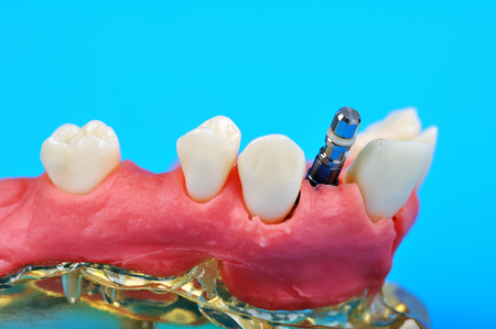 implanted: Dental titanium implant implanted in jaw bone isolate in blue Stock Photo