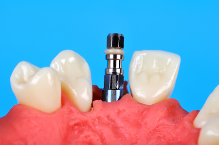 implanted: Dental implant implanted in jaw bone, close up
