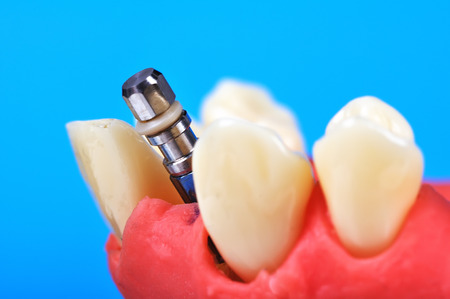 implanted: Dental tooth implant implanted in jaw bone, close up