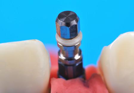 implanted: titanium implant implanted in jaw bone isolate in blue