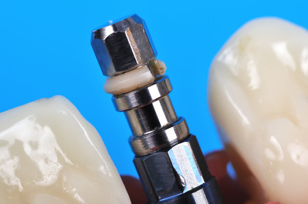 implanted: Dental implant implanted in jaw bone on blue background