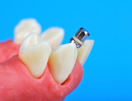 titanium: Dental titanium implant implanted in jaw bone