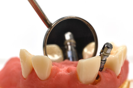 overbite: metal dental implant and oral mirror, close up
