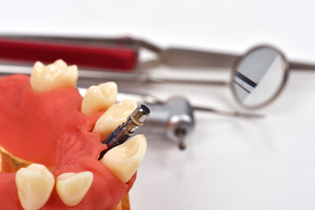 dental clinics: dental implant implanted in jaw bone and dental tools
