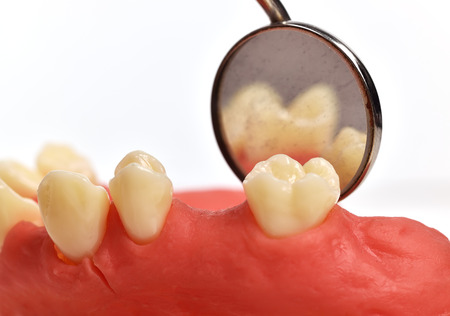 implant: dental implant tooth and oral mirror, close up Stock Photo