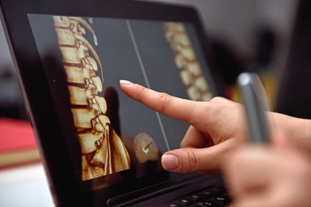 Hand pointing on screen with X-rays of the spine. close up