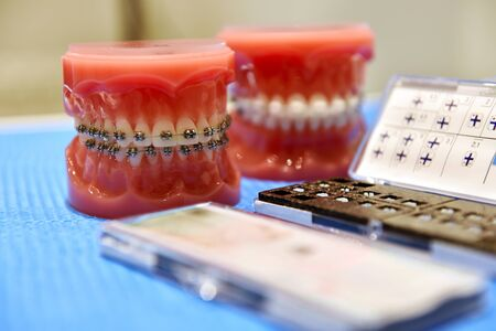 demonstration teeth model of orthodontic braces and medical tools. close up 写真素材