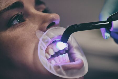 Dentist Fixes Braces With An Photopolymer Lamp In Dental Clinic. Dental Healthcare And Medical Concept. Close Up. Zdjęcie Seryjne
