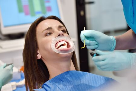 Dentist Perform Dental Implantation Operation On Patient At Dentistry Office. Dental Healthcare And Medical Concept. Zdjęcie Seryjne