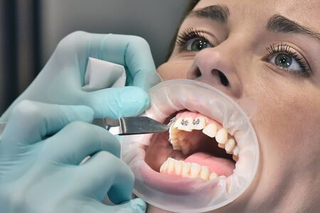 Procedure For Fixing Braces On The Teeth.  Dental Healthcare And Medical Concept. Close Up.