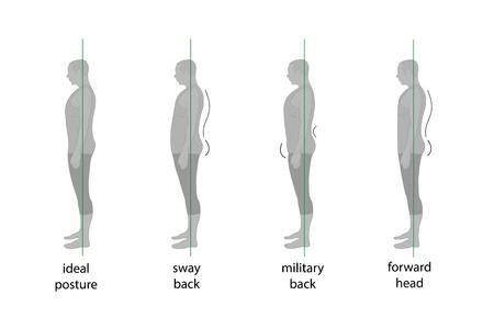 Types of posture in men. Vector illustration. Illustration
