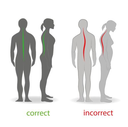Correcte uitlijning van het menselijk lichaam in staande houding voor goede persoonlijkheid en gezond van ruggengraat en bot. Gezondheidszorg en medische illustratie Vector Illustratie