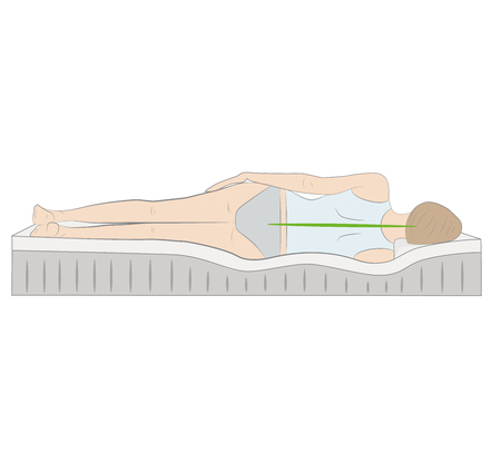 The correct spine alignment when sleeping by on the side. Vector illustration.