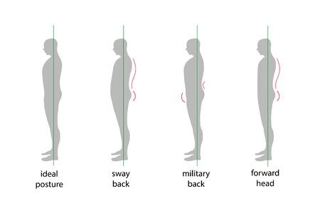 正しいと正しくない姿勢で人のシルエット。  イラスト・ベクター素材