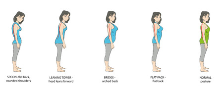 Types of posture women. Vector illustration.