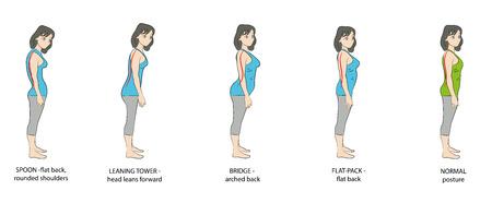 Types of posture women. Vector illustration.