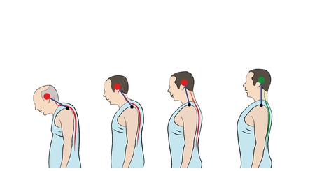 Développement d'une posture courbée avec l'âge, montrant une courbure croissante de la colonne vertébrale. Vecteurs