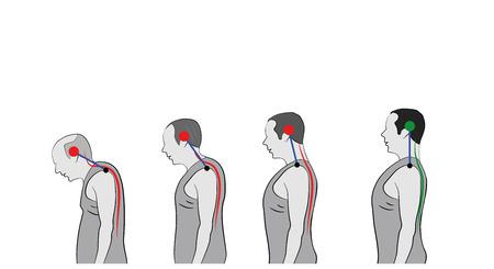 Desarrollo de una postura encorvada con la edad, que muestra una curvatura creciente de la columna vertebral