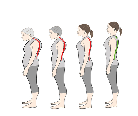 Development of increasing curvature of the spine
