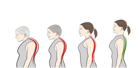 Development of a stooped stance with age, showing increasing curvature of the spine.
