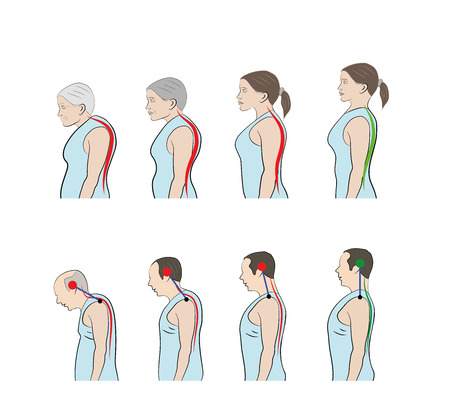 Increasing curvature of the spine in men and women. Illustration