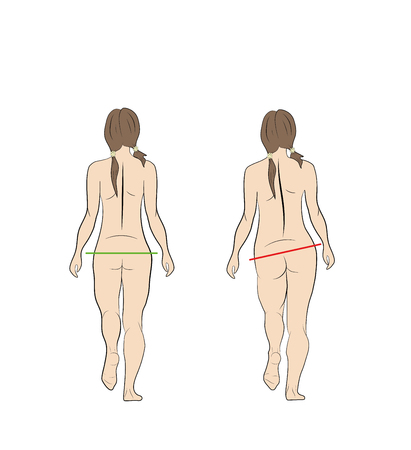 normal and wrong gait of a woman. vector illustration.