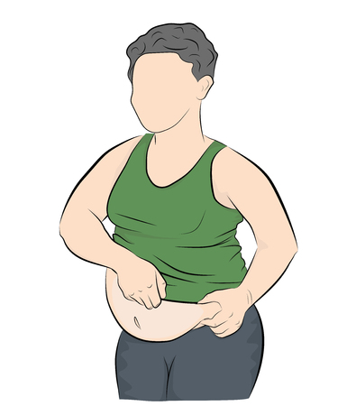 Fat man with a big belly. obesity. weight loss concept. vector illustration. Stock Vector - 117844030