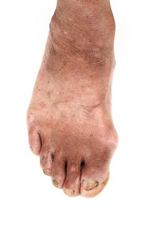 toenail fungus: dirty foot