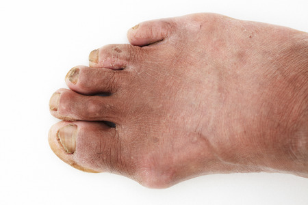 uptight: dirty foot