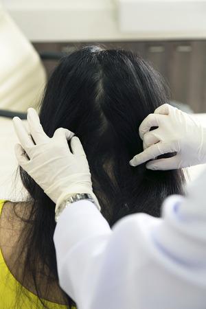 Hand of doctor analyze woman head skin