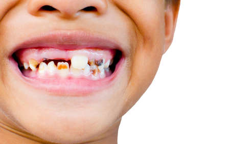 dental calculus: caries boy or asian Boy Tooth Decay. Stock Photo