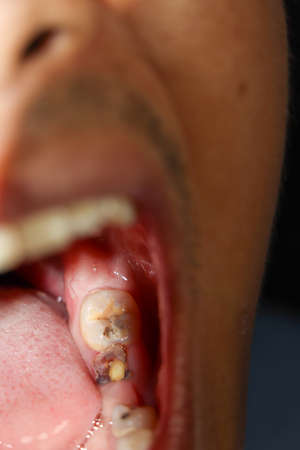 Cavities and broken teeth are painful