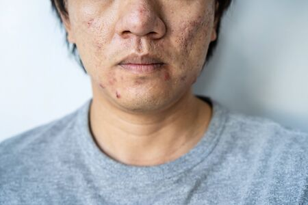 Young asian man with problematic from acne