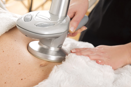 Slimming and cellulite treatment at clinic Foto de archivo