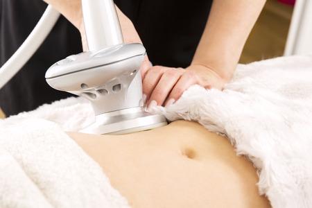 mujer celulitis: Adelgazamiento y celulitis tratamiento con láser en la clínica Foto de archivo