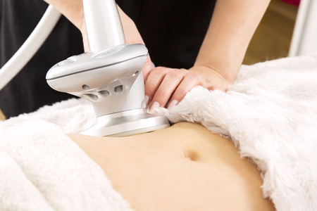 Slimming and cellulite laser treatment at clinic Stock Photo - 39087917