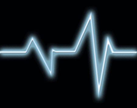 hiebe: Herzfrequenz-Illustration
