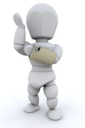 broken wrist: 3D hacen de una persona con una mu�eca rota en un molde