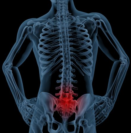 back ache: 3D render of a skeleton highlighting pain in the back
