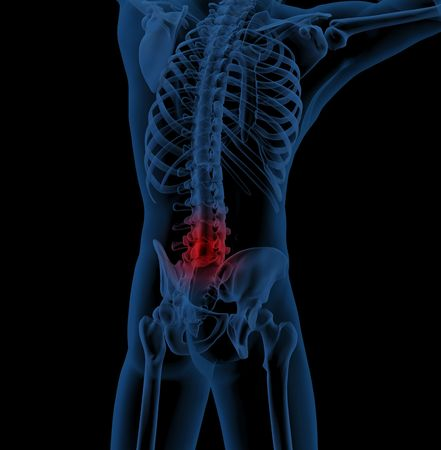 illustrating: 3D render of a medical skeleton illustrating back pain