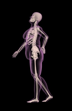 rib cage: 3D render of an overweight female medical skeleton with back pain
