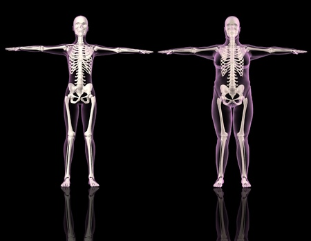 3D renders of two female skeletons one slim and one overweight Stock Photo - 8228130