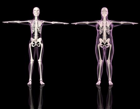 Renders 3D de dos esqueletos femeninos uno delgado y un sobrepeso  Foto de archivo