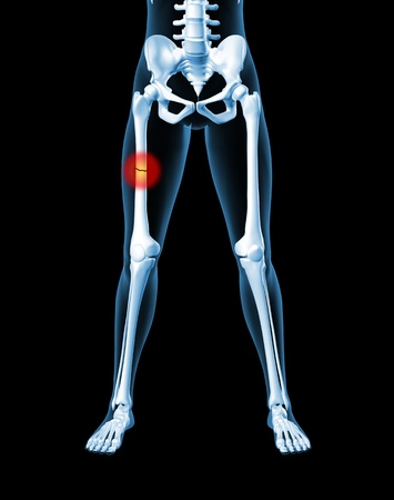 3D render of a medical female skeleton with a broken leg bone highlighted Stock Photo