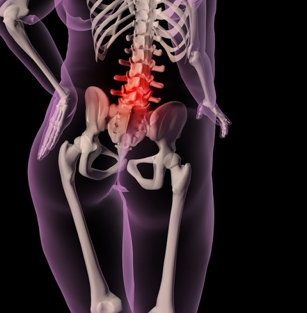 3D render of a medical skeleton showing an overweight female with back pain photo