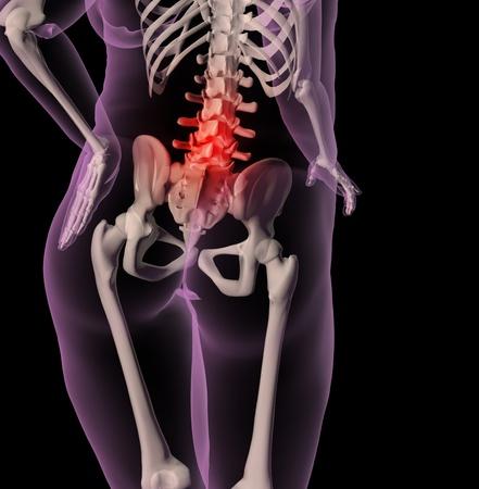 dolor de pecho: Render 3D de un esqueleto m�dico mostrando un sobrepeso femenina con dolor de espalda