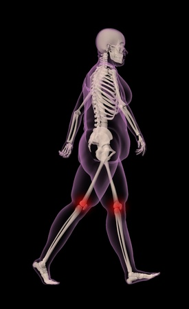 3D render of an overweight female medical skeleton walking with knee joints highlighted photo