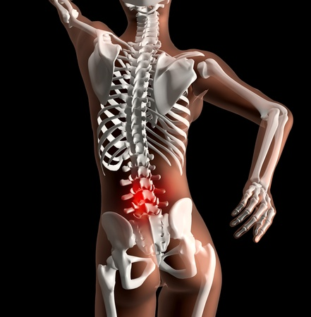 3D render of a female skeleton with pain in back highlighted photo