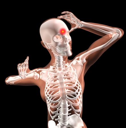 3D render of a female medical skeleton with migraine photo
