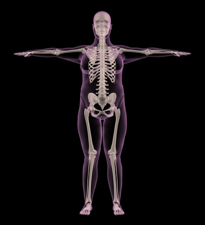 donne obese: 3D rendering di uno scheletro medico di una femmina in sovrappeso